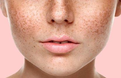 Пигментные пятна на лице: причины возникновения, как избавиться, список рекомендованных средств