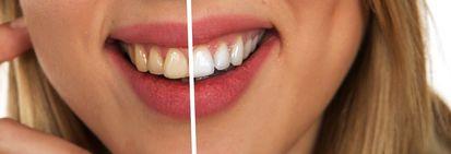 Роскошная улыбка. Как выбрать хорошую зубную пасту